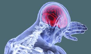 Neuraltherapie nach Dr. Huneke